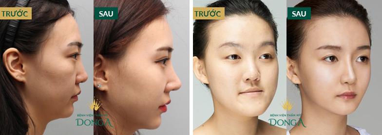 Nâng mũi không phẫu thuật - Hiệu quả nhanh chóng, tiết kiệm chi phí - Hình 7