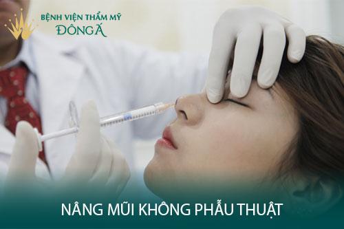 Nâng mũi không phẫu thuật - Hiệu quả nhanh chóng, tiết kiệm chi phí - Hình 1