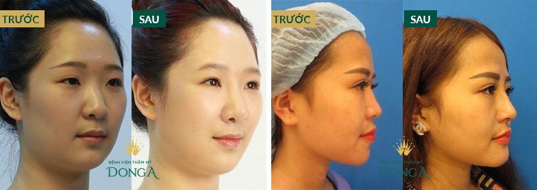 Nâng mũi không phẫu thuật - Hiệu quả nhanh chóng, tiết kiệm chi phí - Hình 8