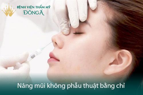 Nâng mũi không phẫu thuật - Hiệu quả nhanh chóng, tiết kiệm chi phí - Hình 3