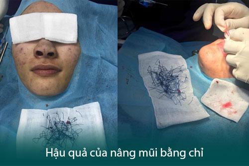 Nâng mũi không phẫu thuật - Hiệu quả nhanh chóng, tiết kiệm chi phí - Hình 6
