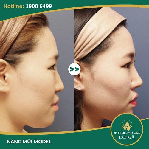 """Nâng mũi Model 3D - Tỷ lệ """"CHUẨN"""" cho dáng mũi đẹp mọi góc nhìn"""