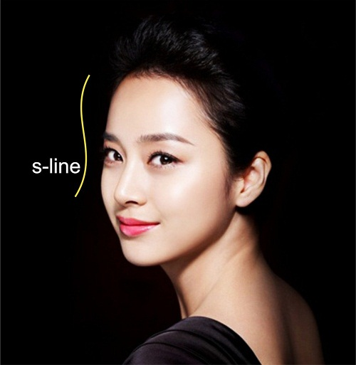 Nâng mũi S Line bao nhiêu tiền? Những ai nên nâng mũi S Line? - Ảnh 1
