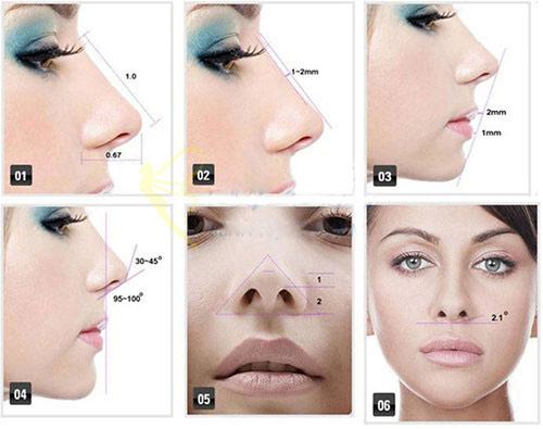 Nâng mũi Sline cấu trúc là gì ? 7 ưu điểm Vượt Trội so với cách thường - Hình 1
