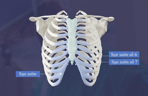Nâng mũi Sline cấu trúc là gì ? 7 ưu điểm Vượt Trội so với cách thường - Hình 4