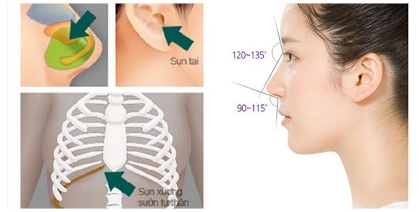 Có nên kết hợp nâng mũi sụn tự thân và sụn sinh học hay không? - Ảnh 9