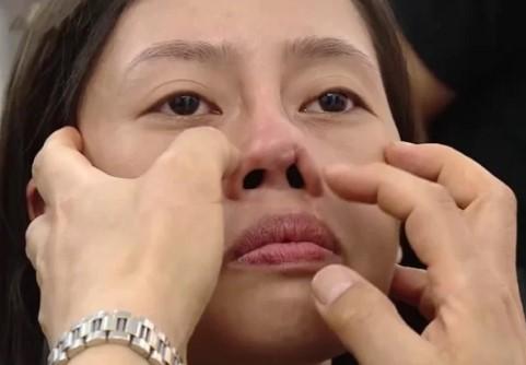Sửa mũi ngắn, hếch, hỉnh với Công Nghệ An Toàn Đẹp Vượt Trội