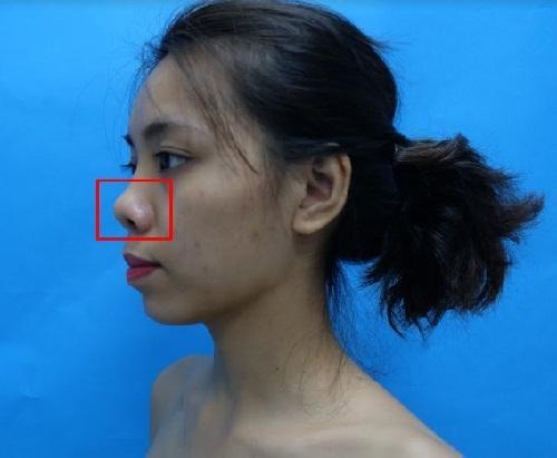 Sửa mũi ngắn, hếch, hỉnh với Công Nghệ An Toàn Đẹp Vượt Trội - Hình 2