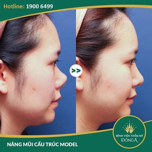 Sửa mũi ngắn, hếch, hỉnh với Công Nghệ An Toàn Đẹp Vượt Trội - Hình 4
