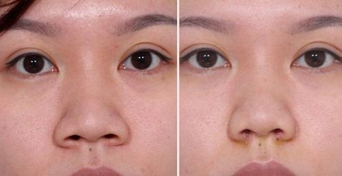 Thu gọn cánh mũi ở đâu đẹp - an toàn - duy trì vĩnh viễn?