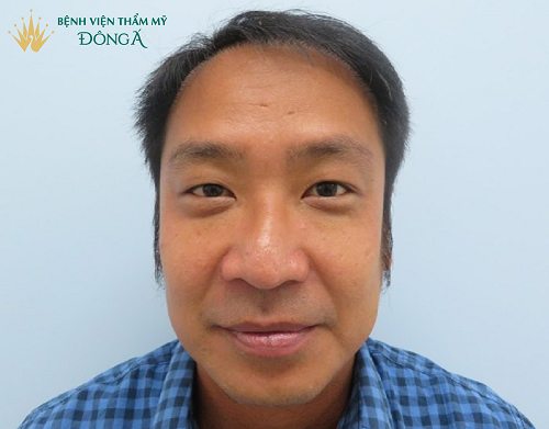 Thu nhỏ đầu mũi - 6 Ưu điểm và những lưu ý chăm sóc sau phẫu thuật - Hình 2
