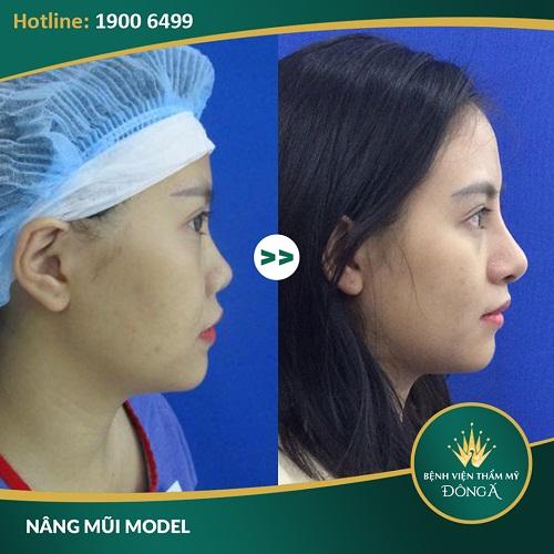 Nâng mũi bằng sụn tai bao nhiêu? Giải pháp an toàn tối ưu
