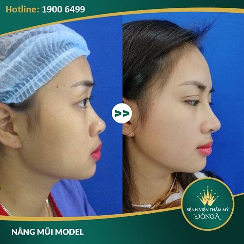 Nâng mũi bằng sụn tai bao nhiêu? Kết quả sau khi nâng mũi sụn tai Model