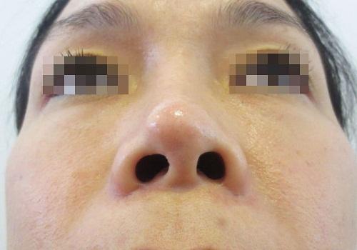 Nâng mũi bằng sụn tai bao nhiêu? Da đầu mũi mỏng làm lộ chất liệu nhân tạo