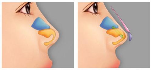 Nâng mũi bọc sụn giá bao nhiêu? Liệu bạn có phù hợp?