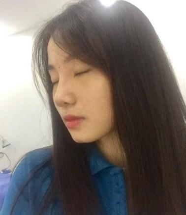 Sau 7 ngày nâng mũi ở Nghệ An - Thẩm mỹ viện Đông Á Vinh, mũi đã hoàn toàn hết sưng