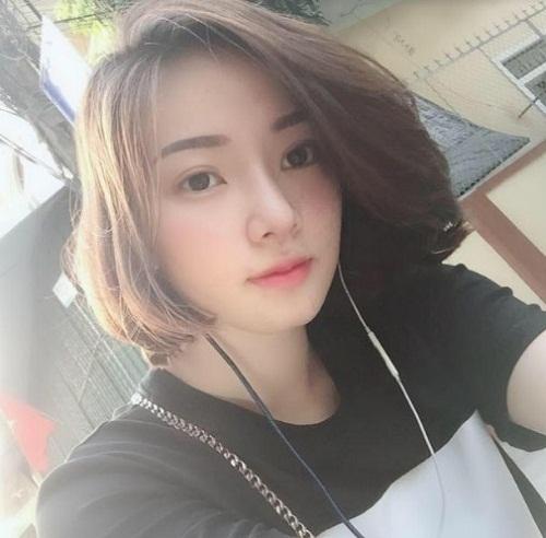 Sau khi nâng mũi ở Nghệ An - Thẩm mỹ viện Đông Á Vinh