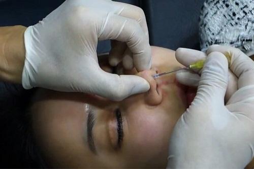 4 Biến chứng sau nâng mũi hay gặp và cách khắc phục Hiệu Quả nhất Bien-chung-sau-nang-mui-8