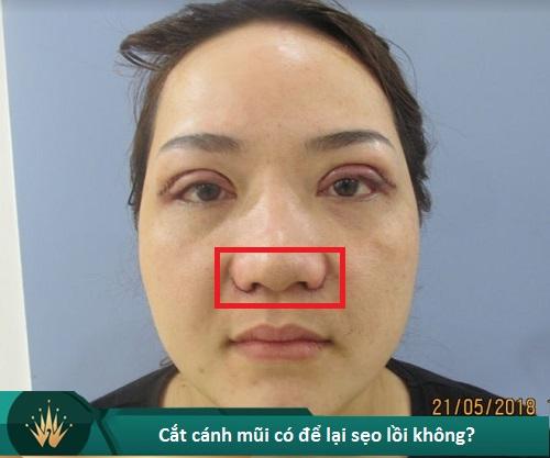 Chuyên gia lý giải nguyên nhân cắt cánh mũi bị sẹo lồi và cách chữa trị - Hình 2