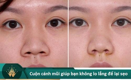 Chuyên gia lý giải nguyên nhân cắt cánh mũi bị sẹo lồi và cách chữa trị - Hình 7