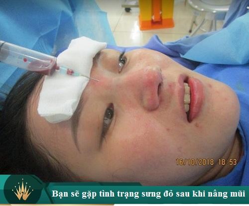 8 Kinh nghiệm nâng mũi S Line được chia sẻ bởi chuyên gia thẩm mỹ - Hình 6