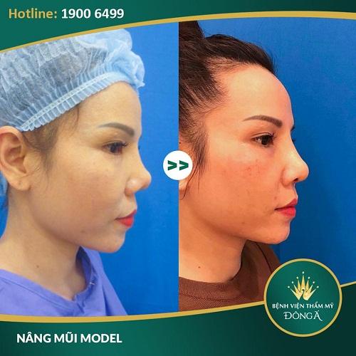 Tại sao nâng mũi không được quan hệ ? Nâng mũi tại Bệnh viện Thẩm mỹ Đông Á để có thể rút ngắn được tối đa thời gian nghỉ dưỡng