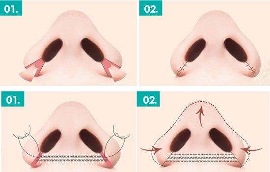 Lỗ mũi hếch nên khắc phục bằng cách nào thì tốt nhất?