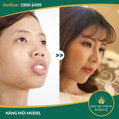 Sửa mũi hếch bao nhiêu tiền? Sở hữu sống mũi cao, thẳng là điều không khó