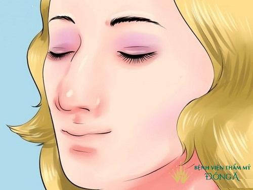 Có hay không phương pháp chỉnh sửa mũi gãy khúc an toàn, vĩnh viễn? - Ảnh 4
