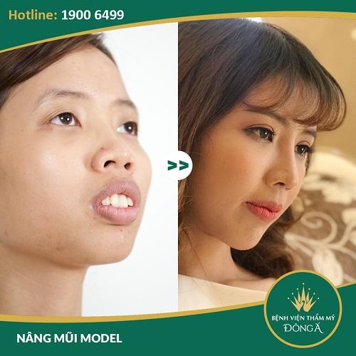 Mũi ngắn phải làm sao? Tại sao nâng mũi thông thường không thể khắc phục?