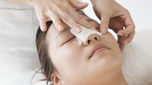 Nâng mũi bao lâu phải làm lại? Giải pháp nâng mũi Đẹp vĩnh viễn - Hình 4