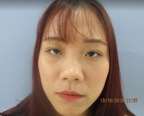 Nâng mũi bị sưng bao lâu? Chia sẻ từ chính người mới nâng mũi - Hình 2