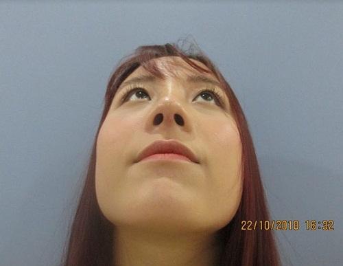 Nâng mũi bị sưng bao lâu? Chia sẻ từ chính người mới nâng mũi - Hình 5