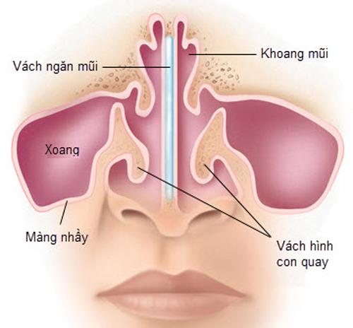 """Thực hư nâng mũi chữa viêm xoang - Giải pháp hay chỉ là """"Tin Đồn""""? - Ảnh 6"""