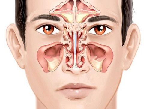"""Thực hư nâng mũi chữa viêm xoang - Giải pháp hay chỉ là """"Tin Đồn""""? - Ảnh 2"""