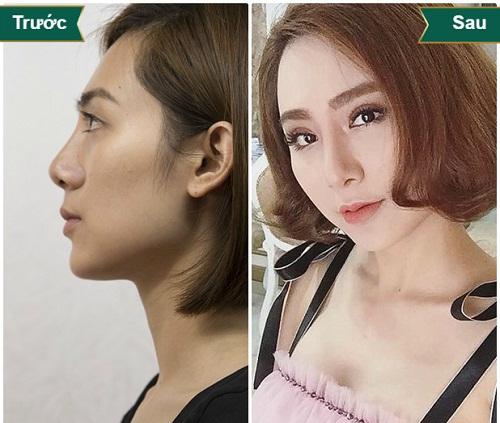 Muốn nâng mũi đẹp tự nhiên thì không nên dùng sụn nhân tạo