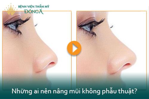 Nâng mũi không phẫu thuật giá bao nhiêu tiền? 2 Kỹ thuật An Toàn nhất - Hình 3