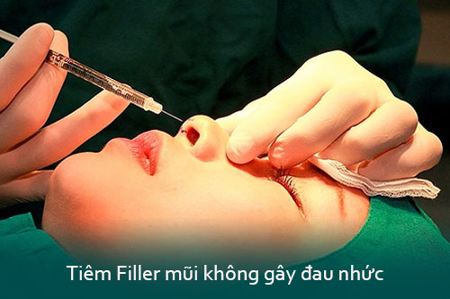 Nâng mũi không phẫu thuật giá bao nhiêu tiền? 2 Kỹ thuật An Toàn nhất - Hình 4