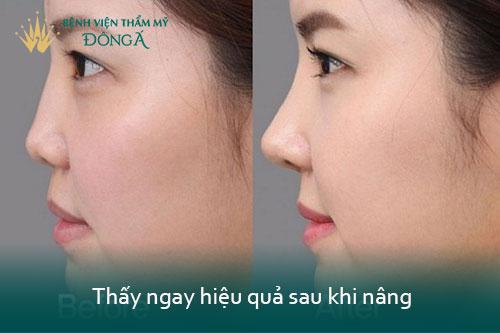 Nâng mũi không phẫu thuật giá bao nhiêu tiền? 2 Kỹ thuật An Toàn nhất - Hình 8