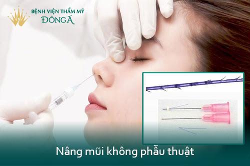 Nâng mũi không phẫu thuật giá bao nhiêu tiền? 2 Kỹ thuật An Toàn nhất - Hình 1