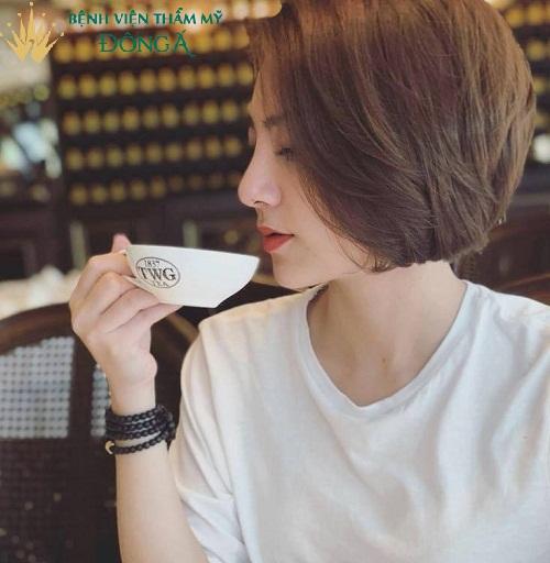 Sửa, Nâng mũi kiêng gì ? 11 Thứ cần kiêng trong Sinh hoạt và Ăn uống - Hình 13