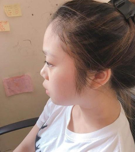 Địa chỉ phẫu thuật nâng mũi ở Đà Nẵng Uy Tín An Toàn Đẹp Vĩnh Viễn - Hình 2
