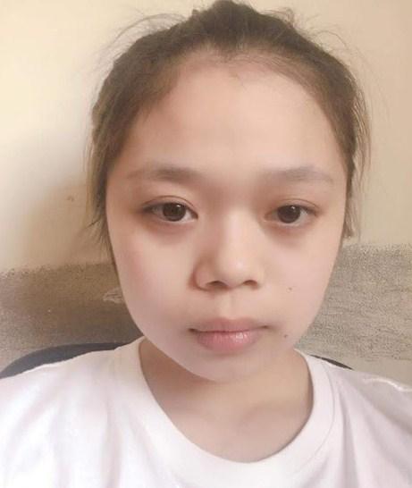 Địa chỉ phẫu thuật nâng mũi ở Đà Nẵng Uy Tín An Toàn Đẹp Vĩnh Viễn - Hình 3