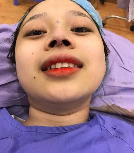 Địa chỉ phẫu thuật nâng mũi ở Đà Nẵng Uy Tín An Toàn Đẹp Vĩnh Viễn - Hình 4