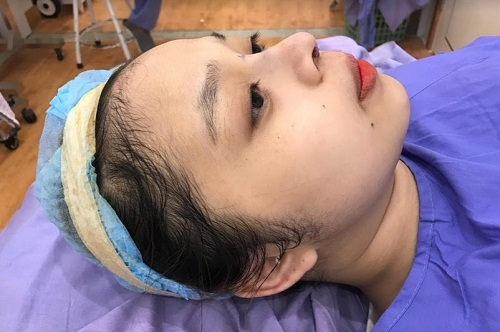 Địa chỉ phẫu thuật nâng mũi ở Đà Nẵng Uy Tín An Toàn Đẹp Vĩnh Viễn - Hình 5