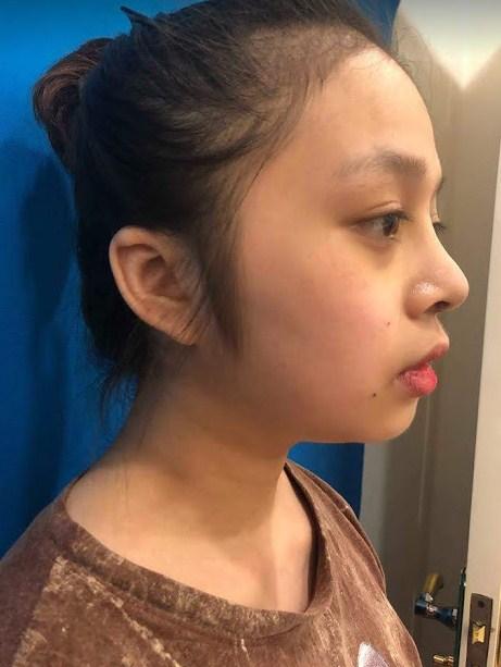 Địa chỉ phẫu thuật nâng mũi ở Đà Nẵng Uy Tín An Toàn Đẹp Vĩnh Viễn - Hình 8