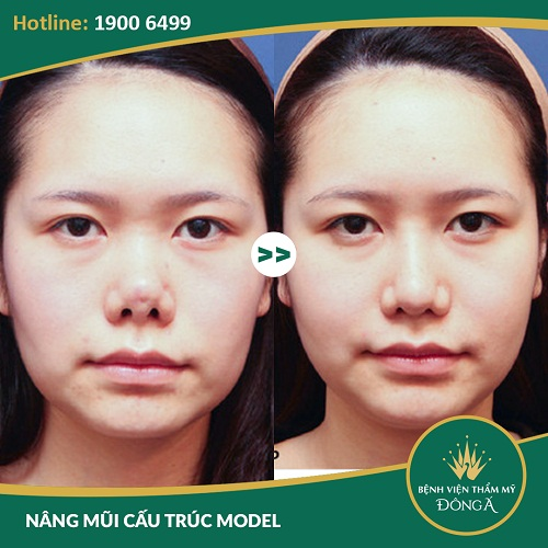Nâng mũi bao lâu phải làm lại? Giải pháp nâng mũi Đẹp vĩnh viễn - Hình 9