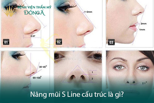 Nâng mũi Sline cấu trúc là gì? 7 Ưu điểm làm Dáng mũi Đẹp hơn - Hình 1