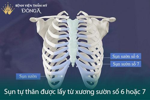 Nâng mũi Sline cấu trúc là gì? 7 Ưu điểm làm Dáng mũi Đẹp hơn - Hình 5
