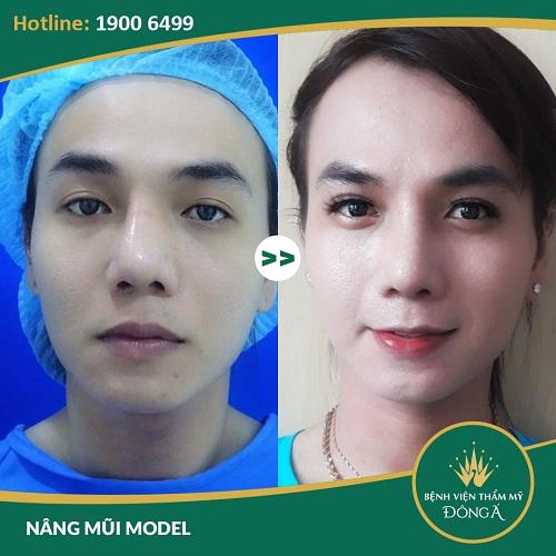 Nâng mũi vĩnh viễn giá bao nhiêu? Nâng mũi Model 4D cấu trúc giúp bạn khắc phục được mọi khuyết điểm của mũi